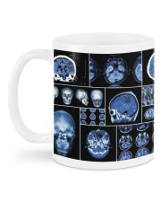 neurology scan dvhd ntv Mug back