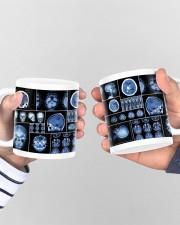 neurology scan dvhd ntv Mug ceramic-mug-lifestyle-44