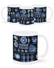 neurology scan dvhd ntv Mug ceramic-mug-lifestyle-45