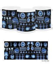 neurology scan dvhd ntv Mug ceramic-mug-lifestyle-46