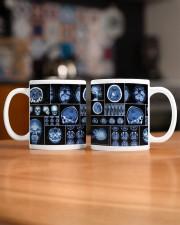 neurology scan dvhd ntv Mug ceramic-mug-lifestyle-51
