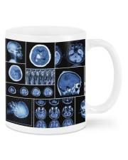 neurology scan dvhd ntv Mug front