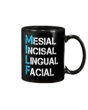 Mesial Incisal Lingual Facial Mug thumbnail