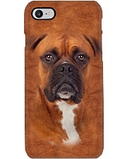 Boxer-Face and Hair Phone Case thumbnail
