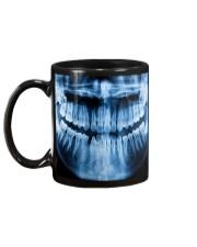 Dentist Blue X-ray Tooth Mug back