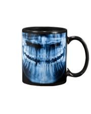 Dentist Blue X-ray Tooth Mug front