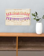 Dentist Upper And Low Teeth 17x11 Poster poster-landscape-17x11-lifestyle-24