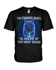 The Most Scars V-Neck T-Shirt thumbnail
