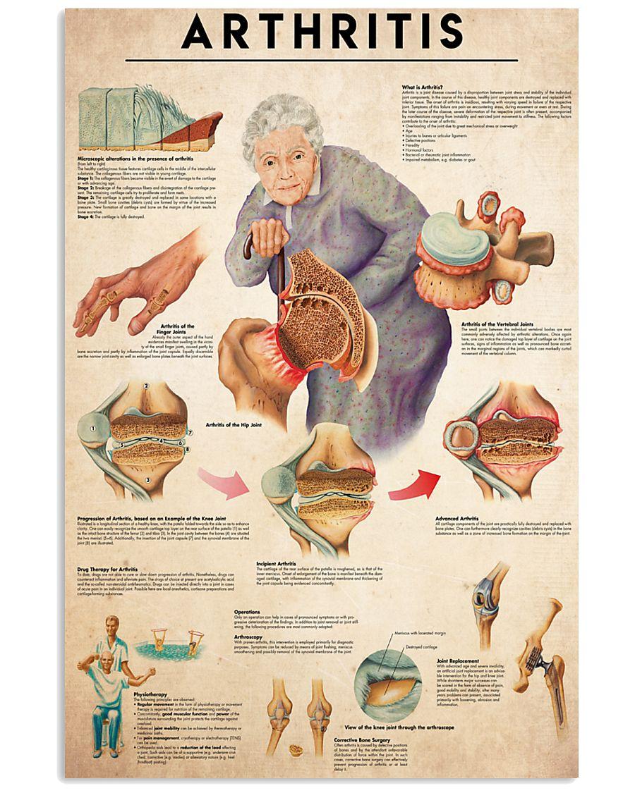 Arthritis 24x36 Poster