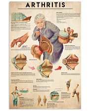 Arthritis 24x36 Poster front