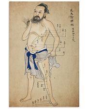 acupuncture print antique 2 24x36 Poster front