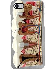 Teeth model dvhd-ngt Phone Case i-phone-8-case
