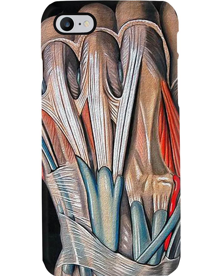 orthopedic hand case Phone Case
