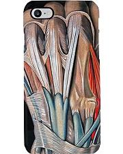 orthopedic hand case Phone Case i-phone-8-case