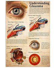 understand glaucoma Vertical Poster tile