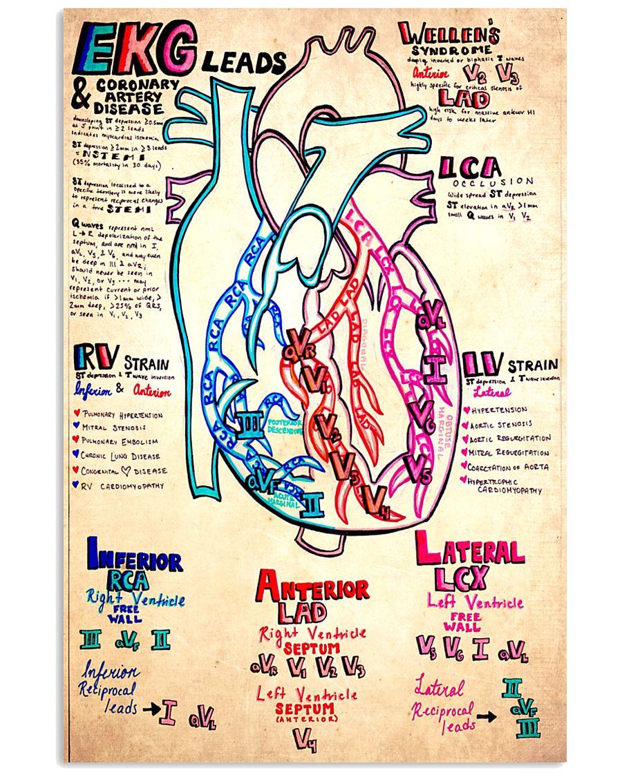 EKG lead doodle 11x17 Poster