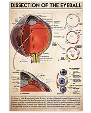 dissection-eyeball 11x17 Poster front