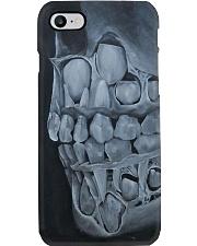 milk teeth  Phone Case i-phone-8-case