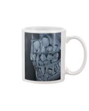 milk teeth  Mug tile