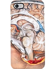 neuro side brain dvhd ntv Phone Case i-phone-8-case