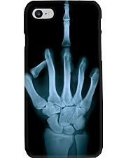 rad tech hand phonecase Phone Case i-phone-8-case