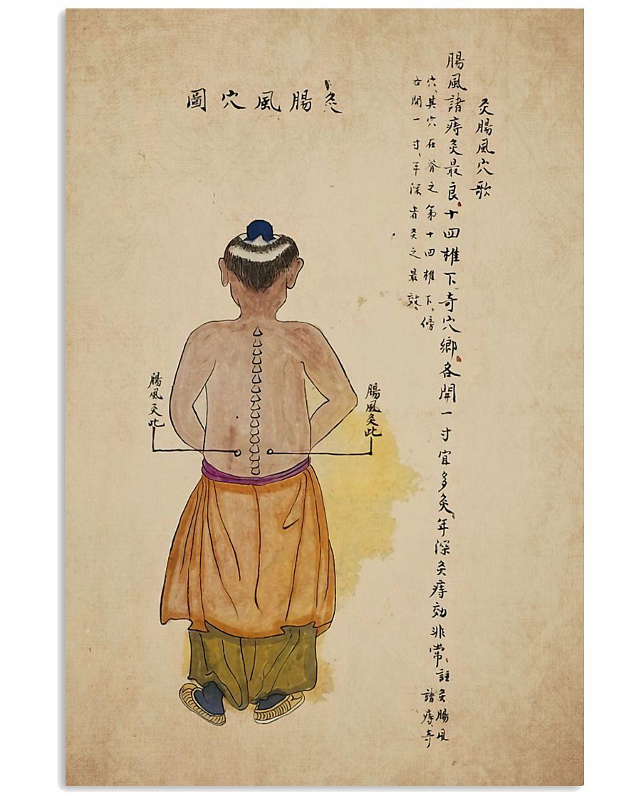 acupuncture print antique 3 24x36 Poster