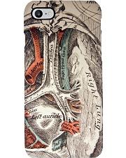 lung vintage case  Phone Case i-phone-8-case