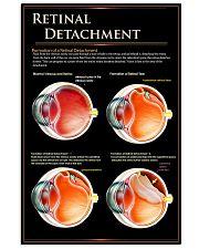 retinal detach  24x36 Poster front
