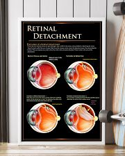 retinal detach  24x36 Poster lifestyle-poster-4