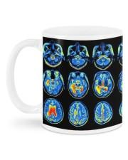 Neuro mug dvhd-ntv Mug back