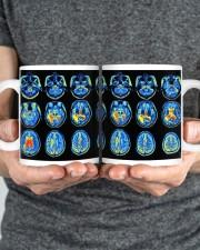 Neuro mug dvhd-ntv Mug ceramic-mug-lifestyle-34