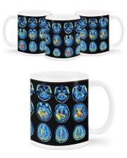 Neuro mug dvhd-ntv Mug ceramic-mug-lifestyle-45