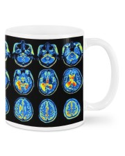 Neuro mug dvhd-ntv Mug front