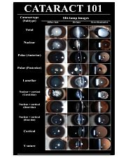 cataract type 1506 24x36 Poster front