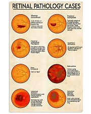 Retinal pathology cases 24x36 Poster front