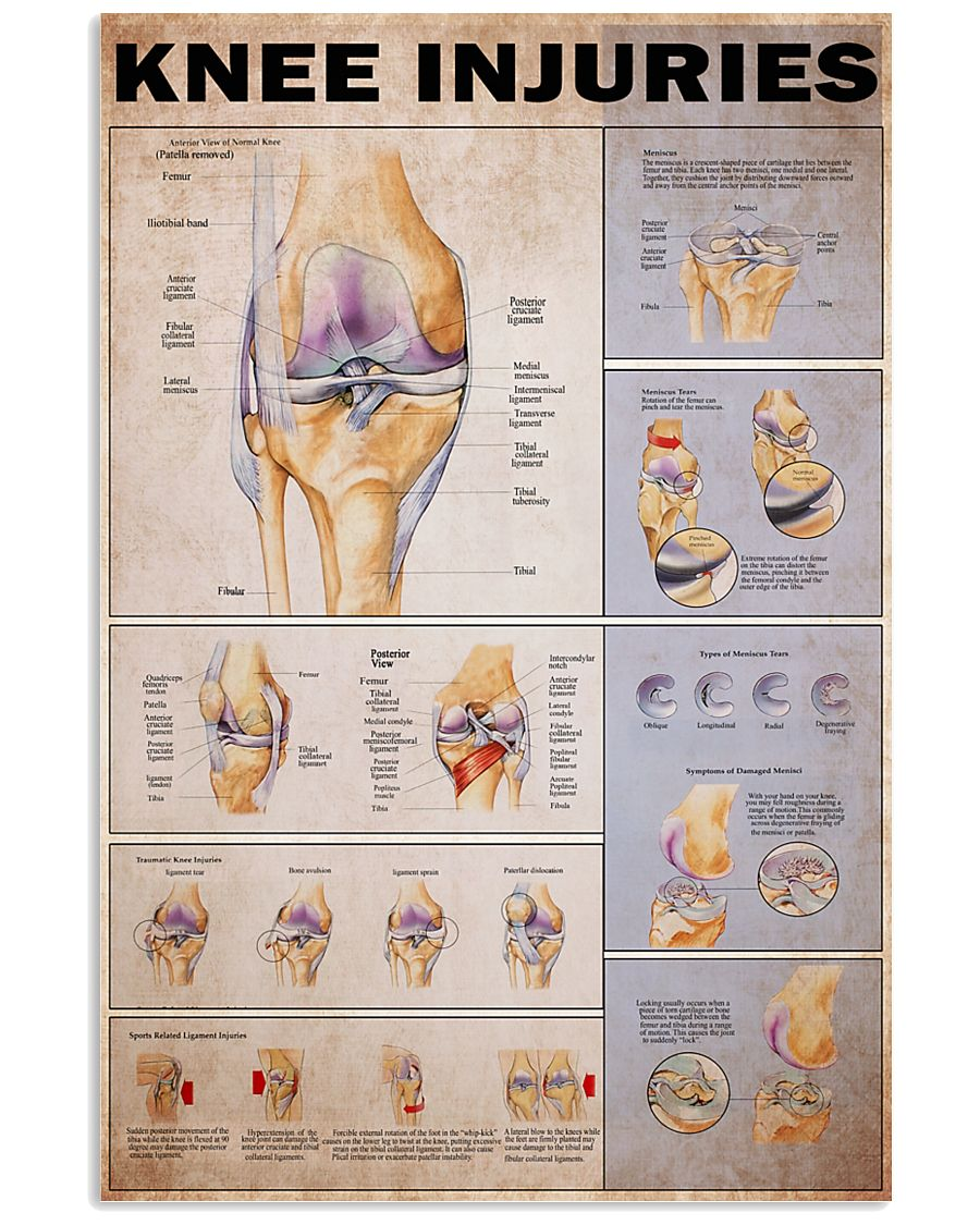 Knees injuries 24x36 Poster
