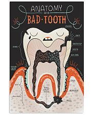 anatomy tooth anatomy bad tooth 2 11x17 Poster front