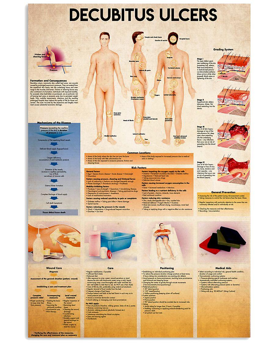 decubitus 24x36 Poster