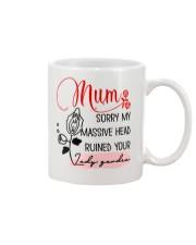 Sorry For Massive Head Mug front