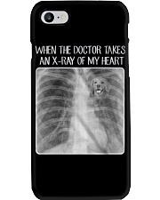 Golden Retriever X-Ray Phone Case thumbnail