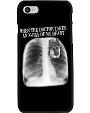 German Shepherd X-ray Of My Heart Phone Case thumbnail