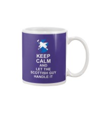 KEEP CALM AND LET THE SCOTTISH GUY HANDLE IT Mug thumbnail